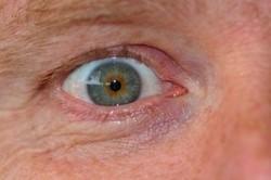 plica semilunaris swollen eye allergies - 600×400